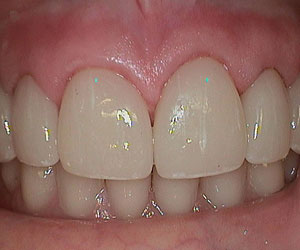ceramic-restorations-lab-denver-co