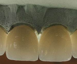 ips-empress-ceramic-restorations-denver-co