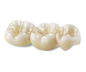 full-contour-zirconia-denver-co