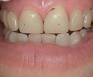 empress-ceramic-restorations-denver-co